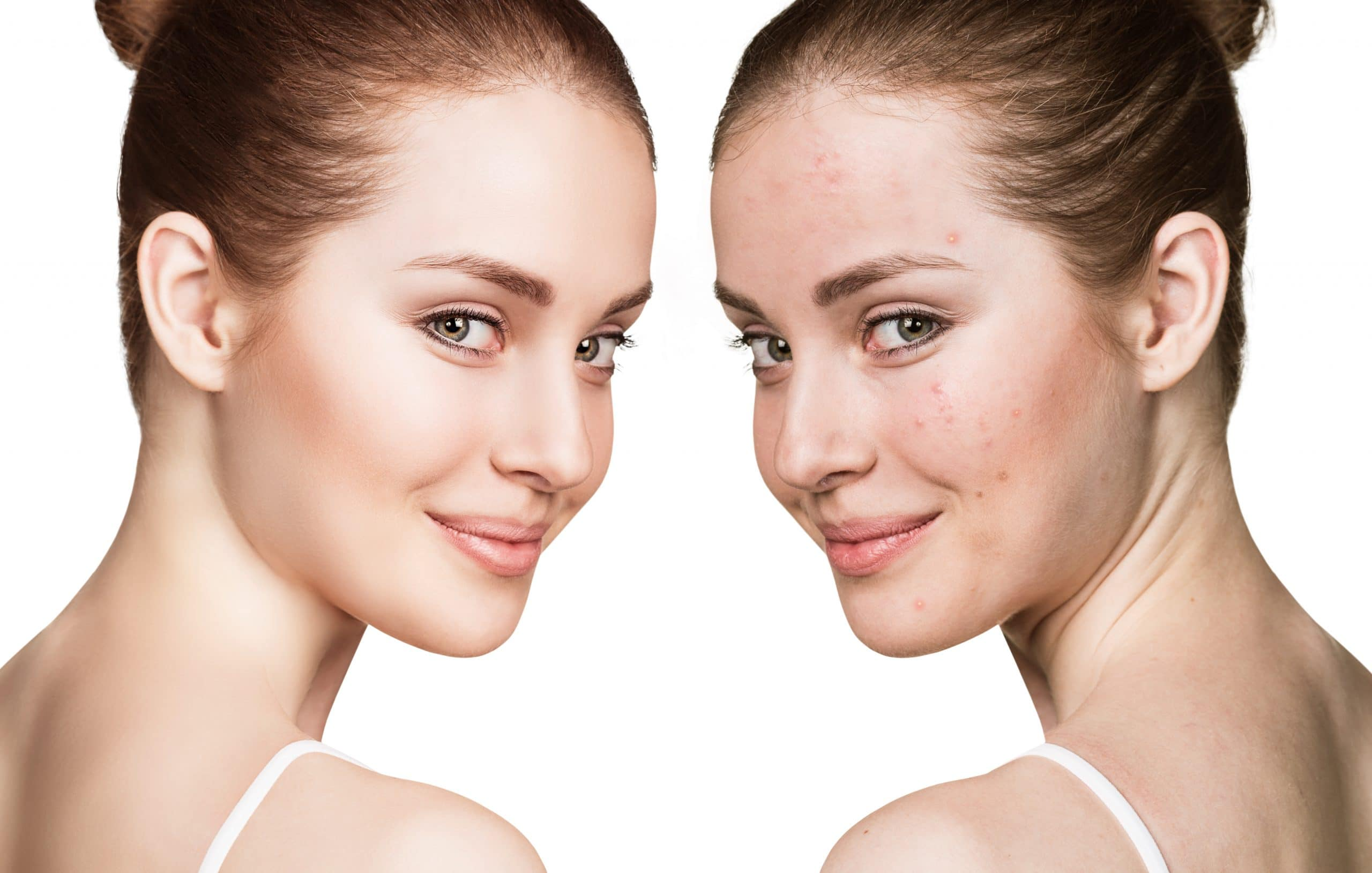 Do Acne Treatments Are Safe and Effective